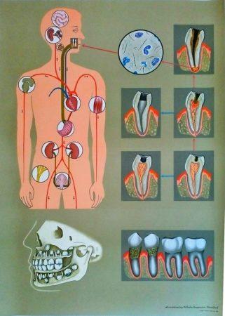 Îngrijirea dentară deficientă